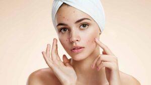 चेहरे के पिंपल्स कील मुंहासे हटाने के घरेलू उपाय