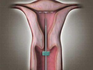 pregnancy rokne ke upay in hindi copper t