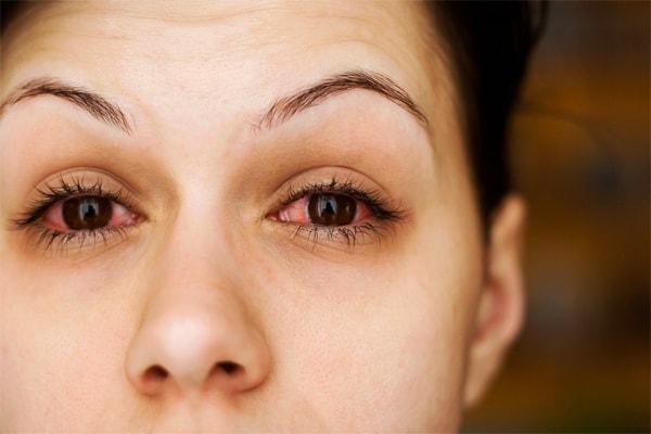 आंखों में खुजली होने का कारण
