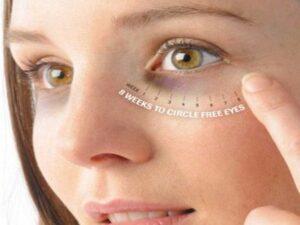 आँखों के निचे कालापन दूर करने के उपाय