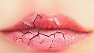 होंठ फटने का कारण और फटे होंठो से बचने के घरेलु उपाय