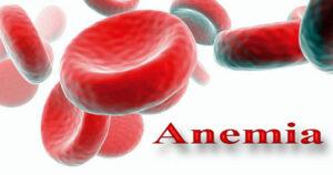 एनीमिया खून की कमी के लक्षण उपाय