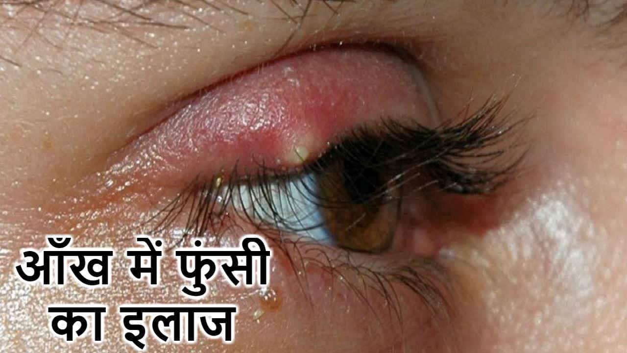 आंखों पर फुंसी क्यों होती है