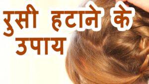 बालों से रूसी हटाने के उपाय How to remove dandruff in hindi