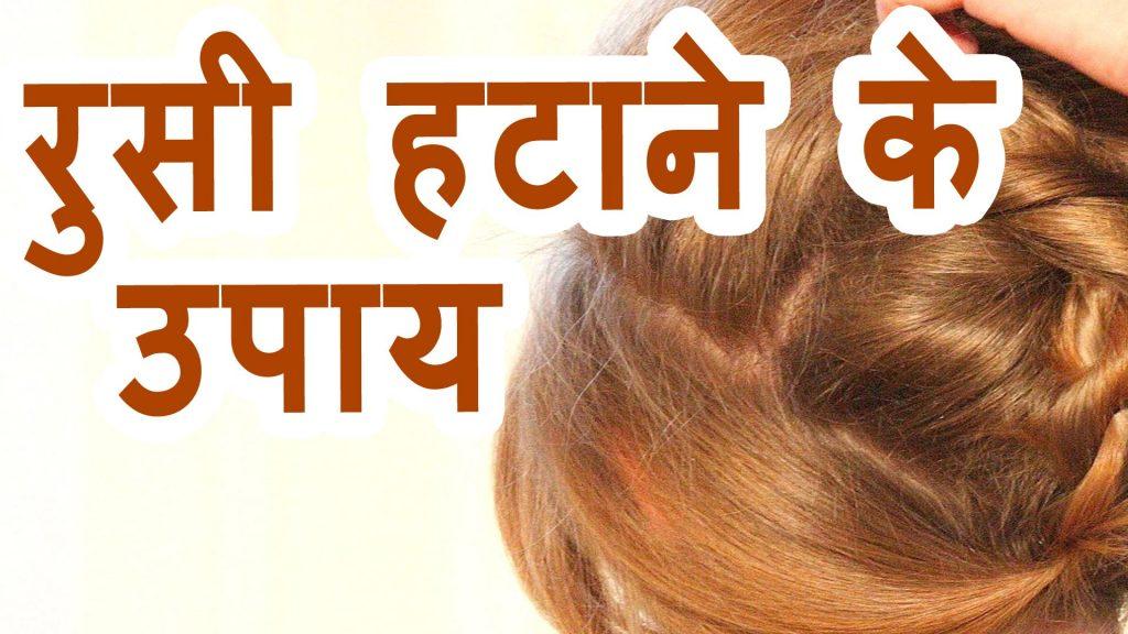 बालों से रूसी हटाने के उपाय