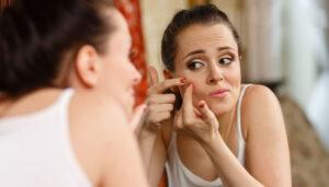 चेहरे के मुहांसों के दाग हटाने के उपाय
