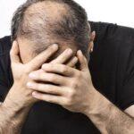 सिर का गंजापन कैसे दूर करें