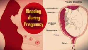 गर्भावस्था में खून निकलने पर क्या करें ?