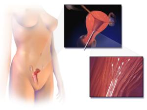 योनि से वीर्य बाहर निकलता है ? जल्दी प्रेग्नंट होने के लिए जरुर आजमाइए यह उपाय