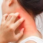 स्किन एलर्जी का सही इलाज