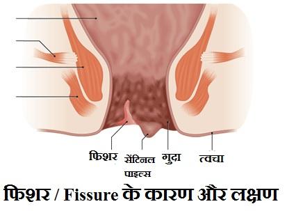 बवासीर के शुरुआती लक्षण क्या है
