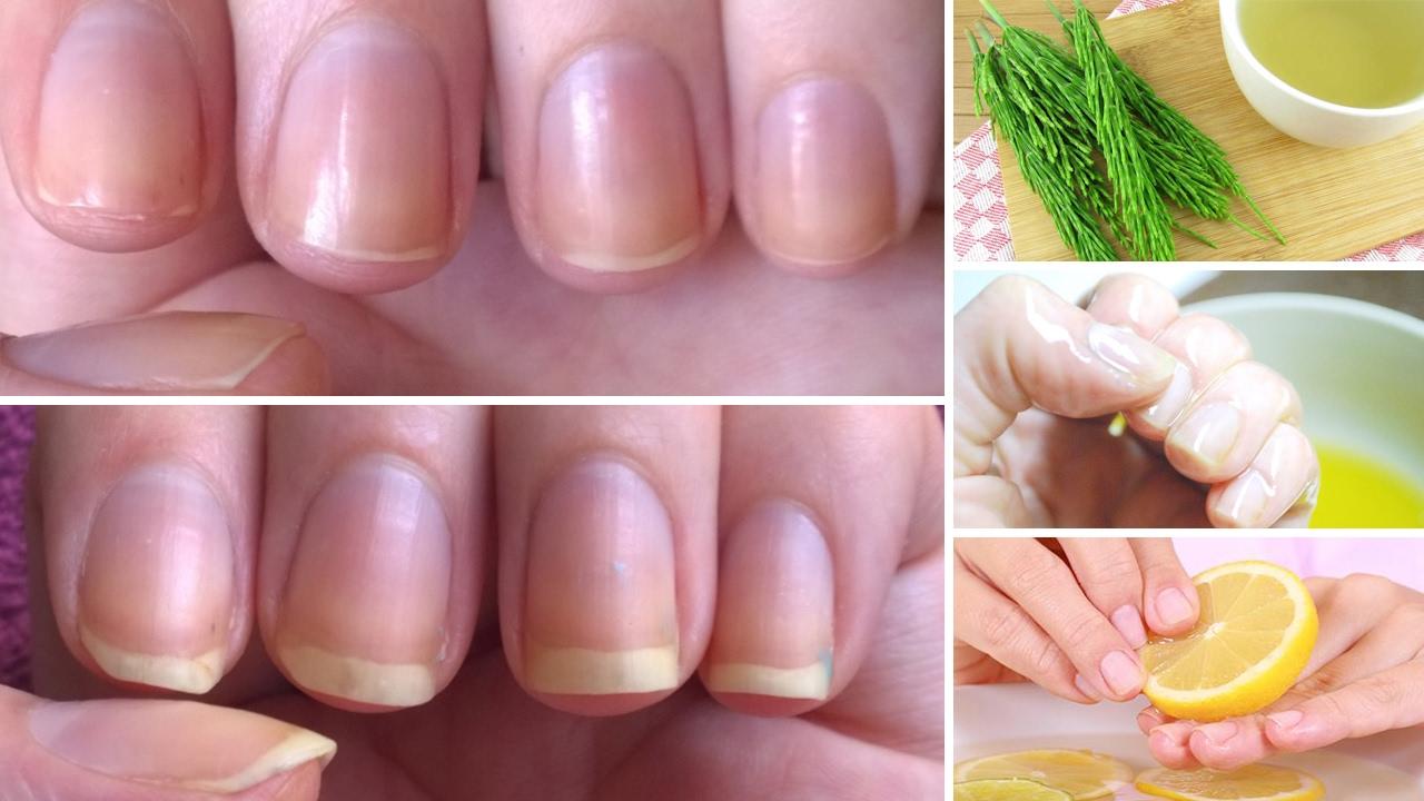 उंगलियों के नाखून तेजी से बढ़ाने के लिए क्या खाना