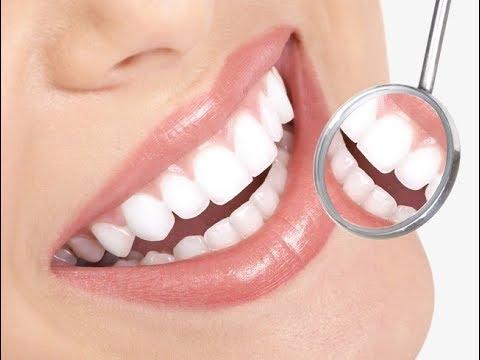 दांतों का कालापन दूर करने की दवा