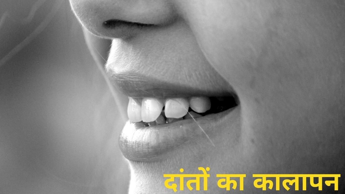 दांतों का कालापन